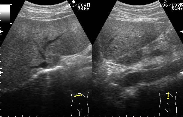 経肛門より行う検査方法により痔瘻・ 肛門周囲膿瘍・ 肛門括約筋不全などの診断ができます。